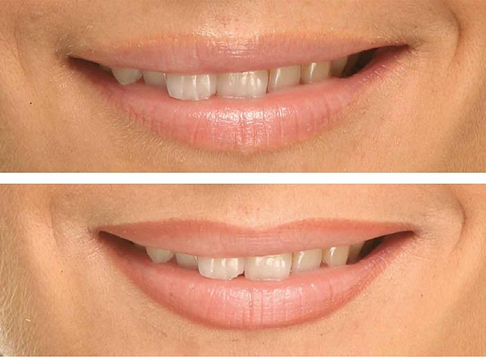 maquiagem definitiva labios 3